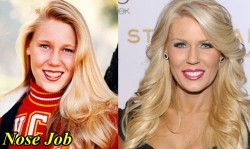 Gretchen Rossi Plastic Surgery Before and After Nose Job