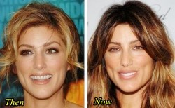 Jennifer esposito plastic surgery before after facelift botox