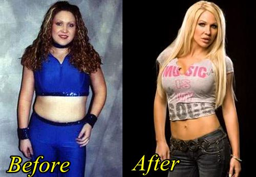 Jillian Hall Plastic Surgery before After
