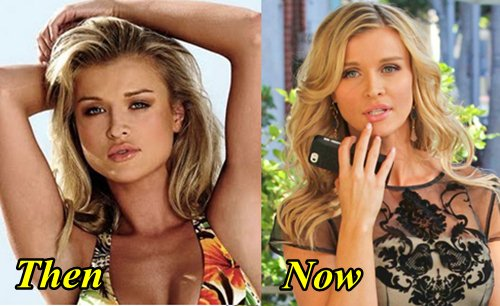 Joanna Krupa Plastic Surgery Before and After