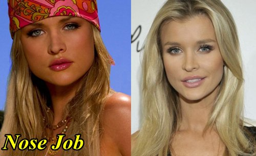 Joanna Krupa Plastic Surgery Before and After Nose Job