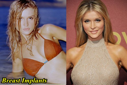 Joanna Krupa Plastic surgery Breast Implants
