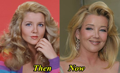 Melody Thomas scott Plastic Surgery before and After facelift