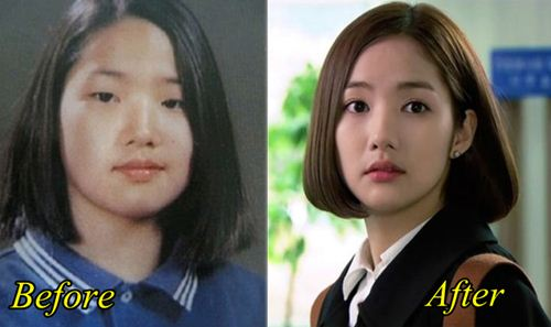 Park-Min-Young-Plastic-Surgery-Before-Af