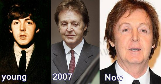 Paul McCartney Plastic Surgery Before and After