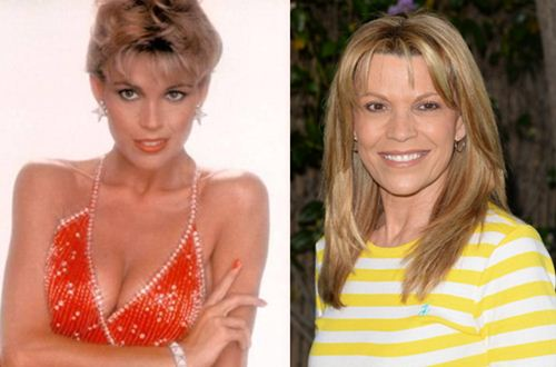 Vanna White Plastic Surgery Before After