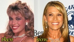Vanna White Plastic surgery