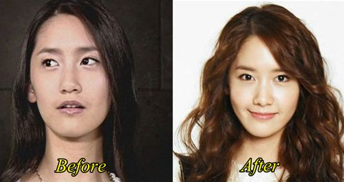 Yoona Plastic Surgery Before and After PicturesYoona Plastic Surgery Nose