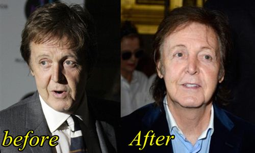 paul mcCartney Plastic surgery