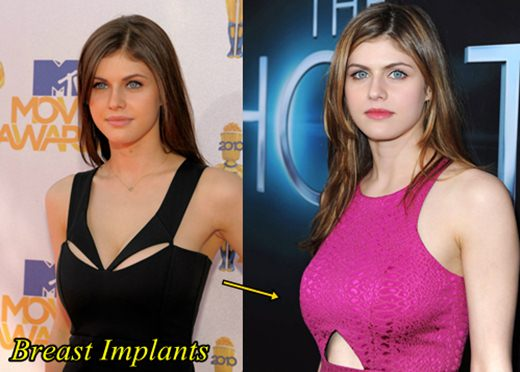 Alexandra Daddario Plastic Surgery Before and After Breast Implants