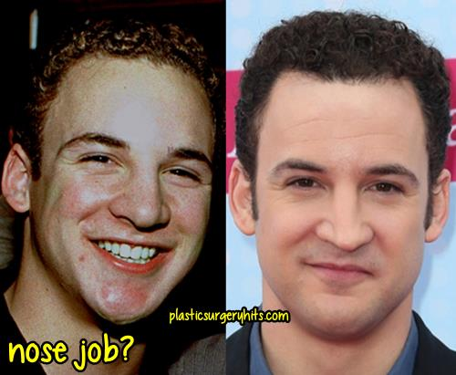 ben savage nose job - 500×411