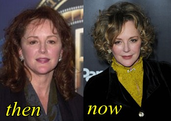Bonnie Bedelia Plastic Surgery Before and After pic