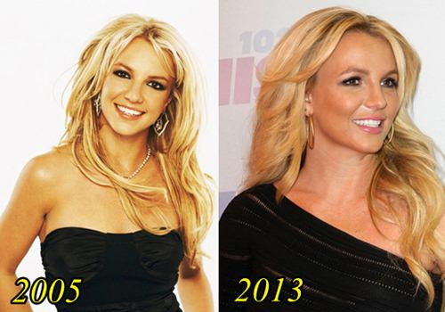 Britney spears Plastic surgery before and After