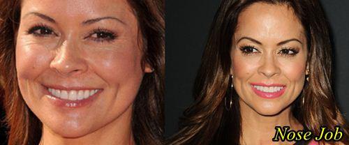 Brooke Burke Nose Job