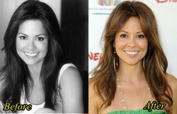 Brooke Burke Plastic Surgery Before and After
