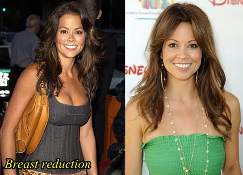 Brooke Burke Plastic surgery Breast Reduction