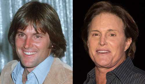 Bruce Jenner Before Plastic Surgery