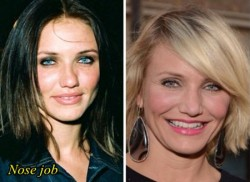 Cameron Diaz Nose Job