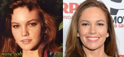 Diane Lane Nose Job