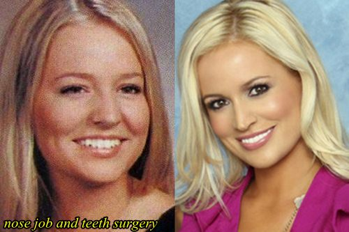 Emily Maynard Plastic Surgery Before and After Nose Job, Teeth Surgery