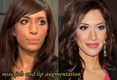 Farrah Abraham Plastic Surgery Nose Job an Lip Augmentation