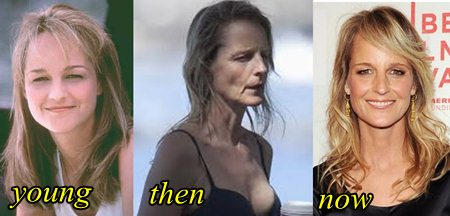 Helen hunt plastic surgery before and after piicture