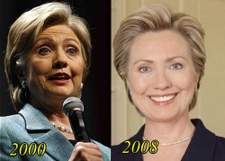 Hillary Clinton Plastic Surgery Before and After Facelift