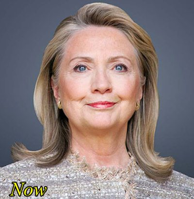 Hillary Clinton Plastic Surgery Facelift