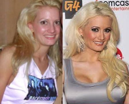 Holly Madison Plastic Surgery Breast Implants