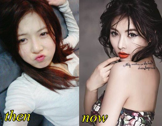 Hyuna Plastic Surgery Before and After