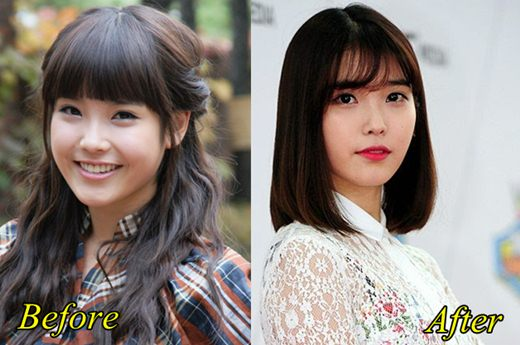 IU Plastic Surgery Before and After Picture