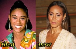 Jada Pinkett Plastic Surgery Before After
