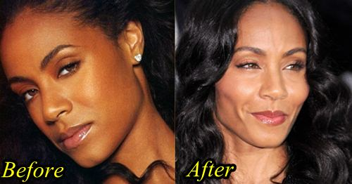 Jada Pinkett Plastic Surgery
