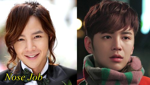 Jang Geun Suk Plastic surgery Nose job