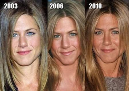 Jennifer Aniston Plastic surgery, Nose Job