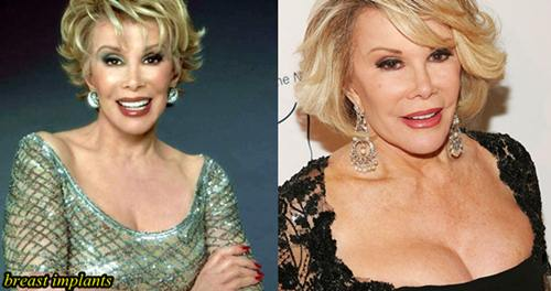 Joan Rivers Plastic Surgery Breast Implants