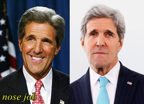 Did John Kerry Have Plastic Surgery