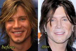 John Rzeznik Plastic sSurgery Before and After