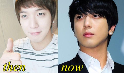 Jung Yong Hwa Plastic Surgery Before and After
