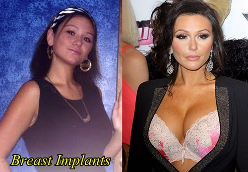 Jwoww Plastic Surgery Before and After Breast implants