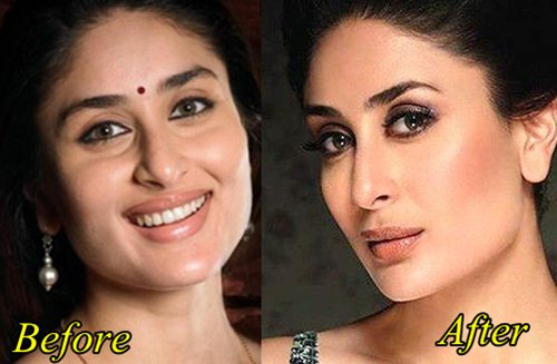 Kareena Kapoor Plastic surgery Before and After