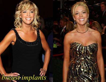 Kate Gosselin Breast Implants