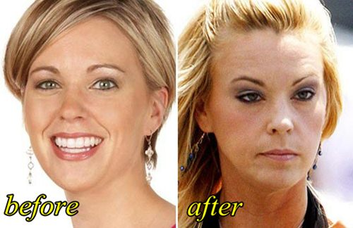 Kate Gosselin Plastic Surgery Before and After Picture