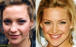 Kate Hudson Nose Job