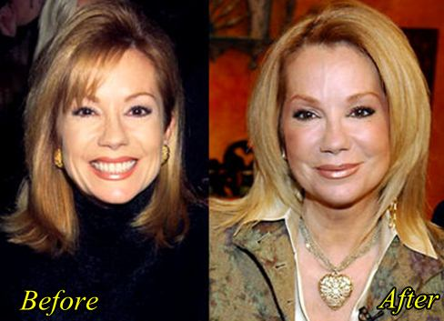 Kathy Lee Gifford Plastic Surgery Before And After