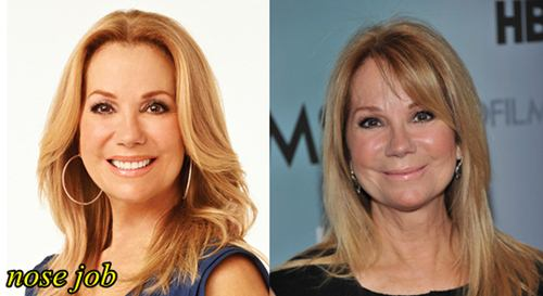 Kathy Lee Gifford Plastic Surgery Nose Job