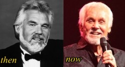 Kenny Rogers Plastic Surgery Before and After