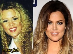 Khloe Kardashian Plastic Surgery Nose Job