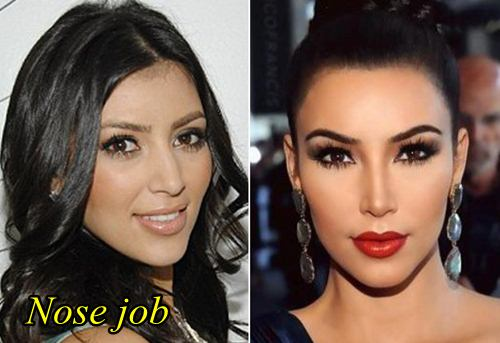 kim kardashian plastic surgery before after nose job plastic surgery hits. Black Bedroom Furniture Sets. Home Design Ideas