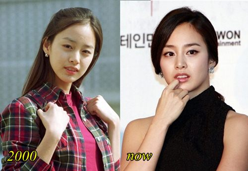 Kim Tae hee Plastic Surgery Before and After Picture